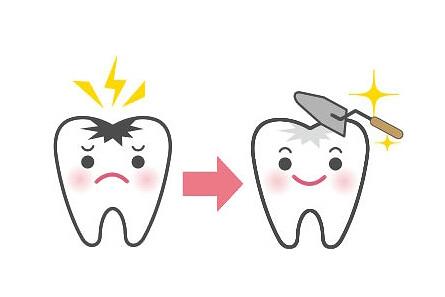 できる限り歯を削らない治療