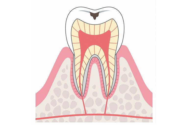 エナメル質へ進行したむし歯