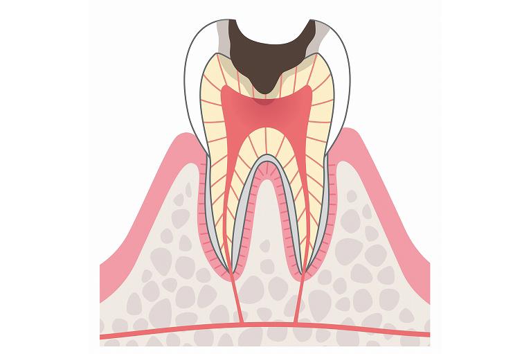 神経まで達したむし歯