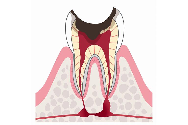 歯が崩壊して歯根が残ったむし歯