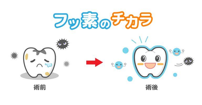 所沢 小児歯科 フッ素